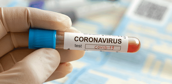 Exame de coronavírus incluído no rol de procedimentos da ANS